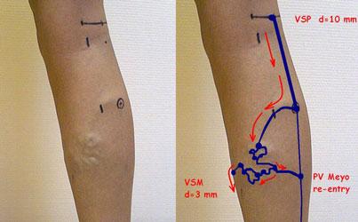 Как правильно наносить мазь на вены на ногах