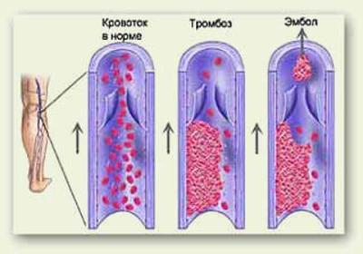 Тромбоз глубоких вен и его лечение
