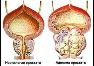 Профилактика и лечение хронического простатита в домашних условиях